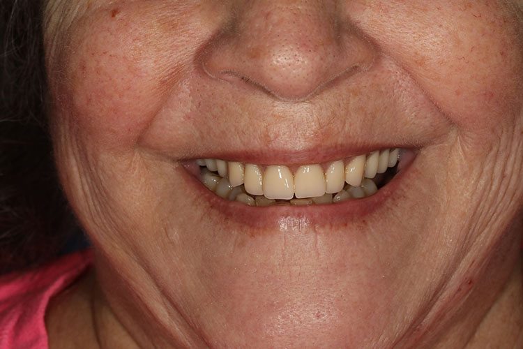 Dental Implant Smile Makeovers - Case1 - After