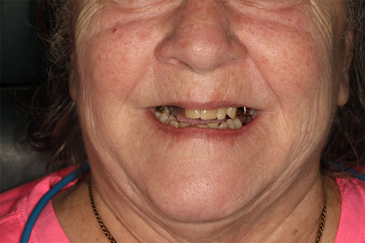 Dental Implant Smile Makeovers - Case1- Before