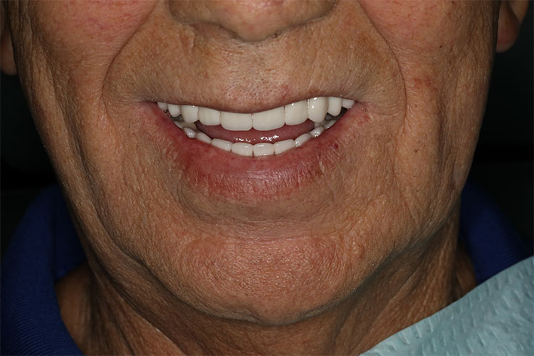 Dental Implant Smile Makeovers - Case2 - After