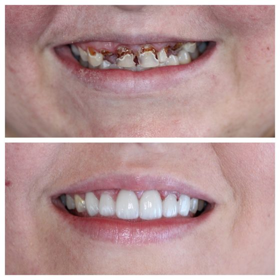 Crown Cosmetic Dentistry