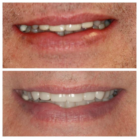 Crown Replacement Cosmetic Dentistry