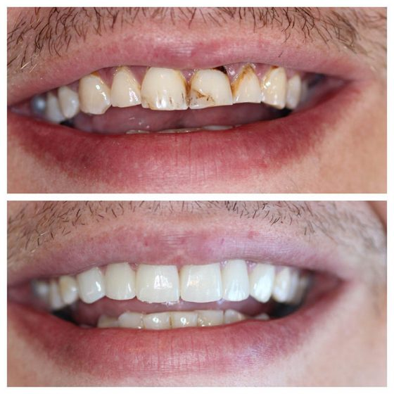 Crowns Cosmetic Dentistry