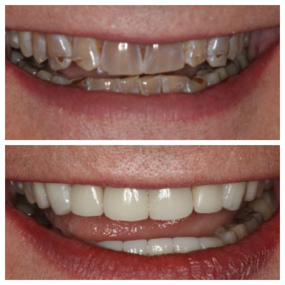 Veneers Cosmetic Dentistry