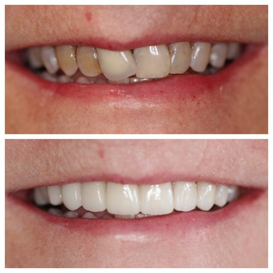 Veneers, Crowns, Bridge Cosmetic Dentistry