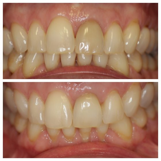 Whitening Cosmetic Dentistry