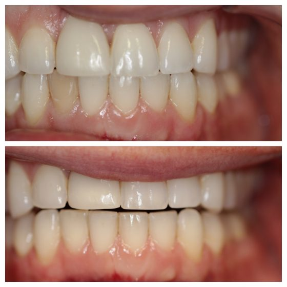 Internal Bleaching Cosmetic Dentistry